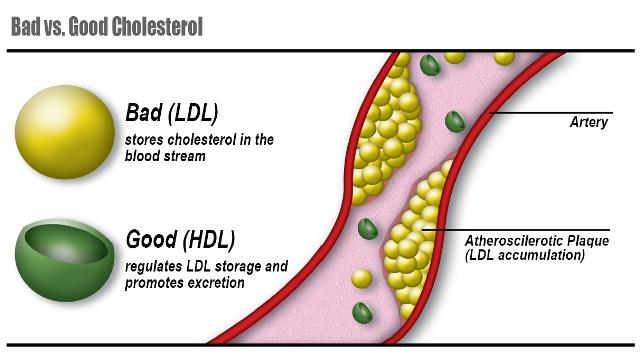 cholesterol the good the bad and This free medicine essay on the good, the bad and the ugly - cholesterol is perfect for medicine students to use as an example.