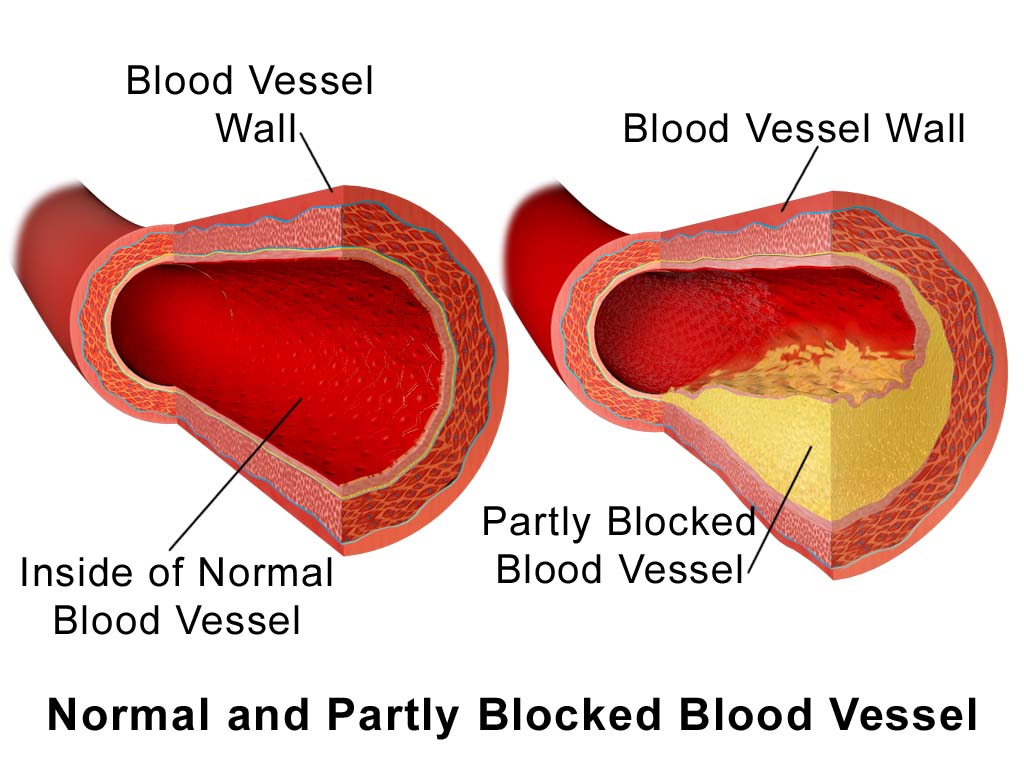 block blood vessel
